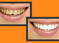 Prekonajte strach zo zubára a vyhrajte nový úsmev z Telerána